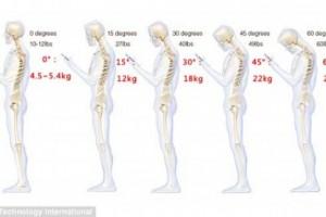 !!!走路低头搞机等于给脊椎增加27公斤压力